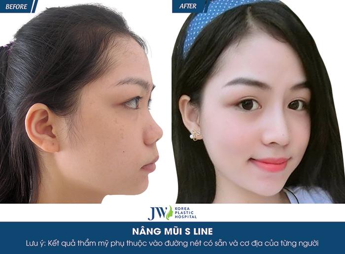 tái phẫu thuật mũi, nâng mũi s line, nâng mũi s line plus