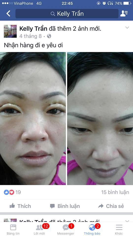 Sửa mắt hỏng
