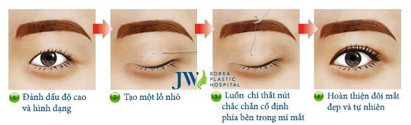 quy trình nhấn mí mắt