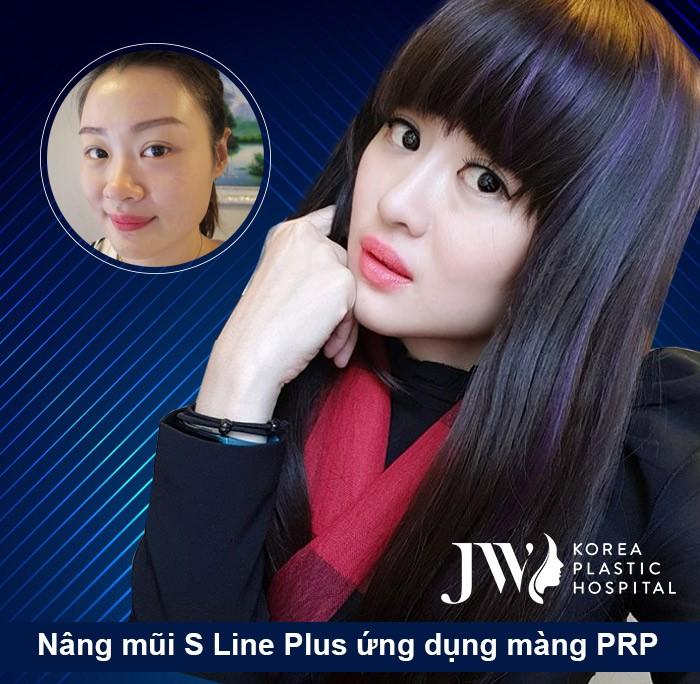 Lean Yee Lin người gốc Singapore tìm đến đến Việt Nam nâng mũi công nghệ S Line Plus