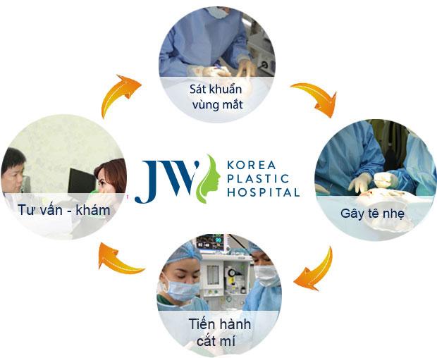 3 tiêu chí Cắt mí Hàn Quốc đẹp đúng chuẩn - Ảnh 7