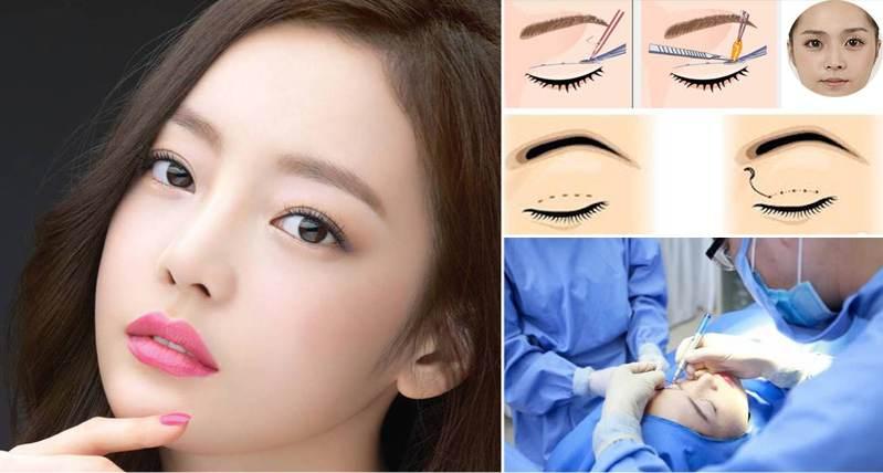cắt mí mắt Hàn Quốc