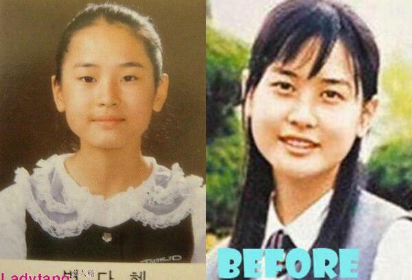 diễn viên Hàn Quốc phẫu thuật thẩm mỹ