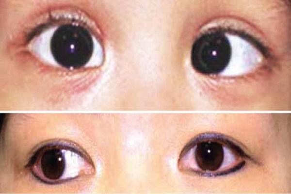 phẫu thuật mắt lác