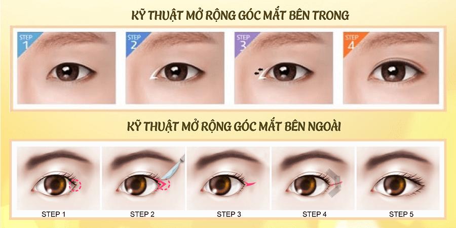 Cắt mắt to - 60 phút mắt đẹp chuẩn Hàn - Duy trì vĩnh viễn - Ảnh 3