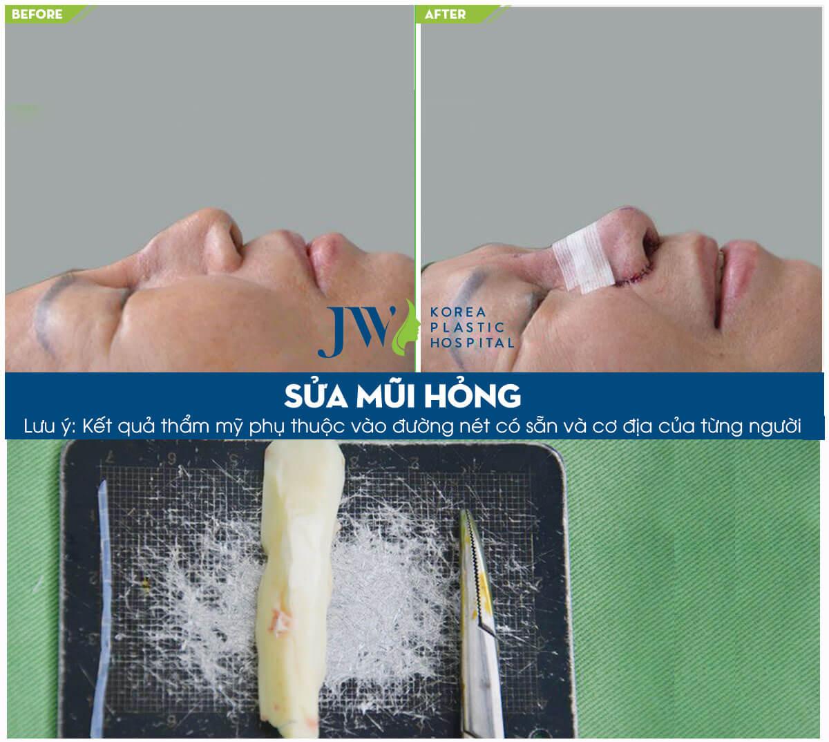 Sửa mũi đã phẫu thuật - Trải nghiệm người trong cuộc - Ảnh 3