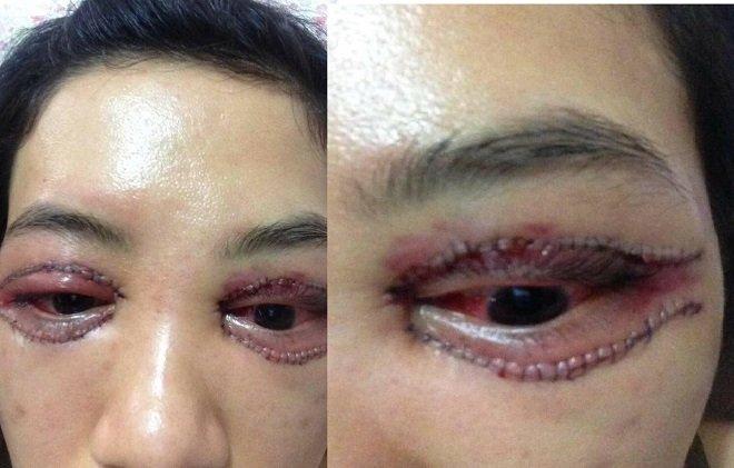 Cắt mí mắt và biến chứng ở trung tâm thiếu uy tín