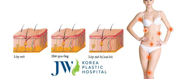 Hút mỡ toàn thân cho người mập toàn diện không cần phẫu thuật - Ảnh 5