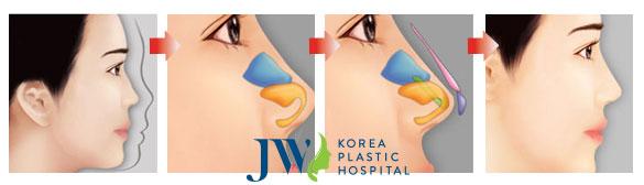 Quá trình nâng mũi s line