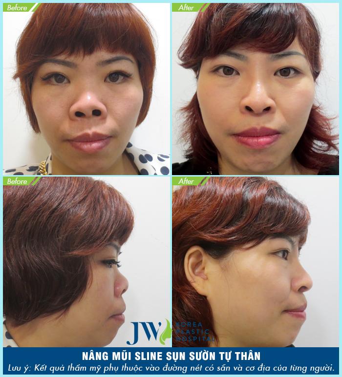 Nhận biết các dấu hiệu nhiễm trùng sau khi nâng mũi và cách điều trị - Ảnh 7