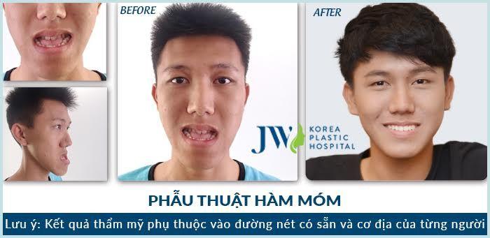 phau-thuat-ham-mom-6