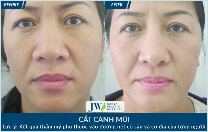 cat-canh-mui-5