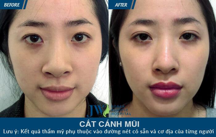 cat-canh-mui-4