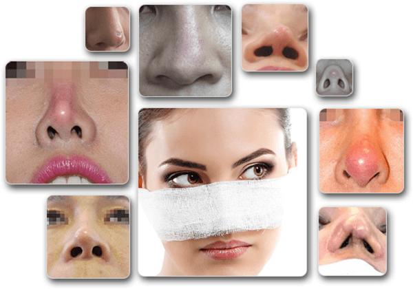 dấu hiệu nhiễm trùng sau khi nâng mũi