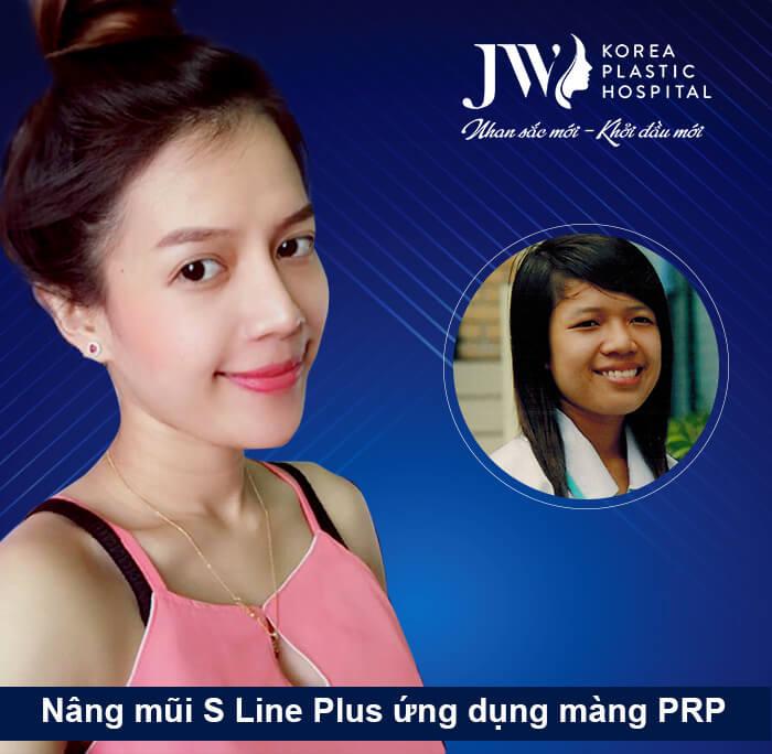Minh Yến - Nâng mũi S line Plus