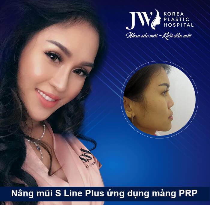 Ngọc Hạnh - Nâng mũi S line Plus