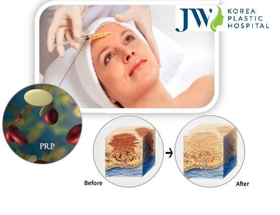 Trẻ hóa bằng tế bào gốc tự thân với công nghệ Puregraft hiện đại - Ảnh 2