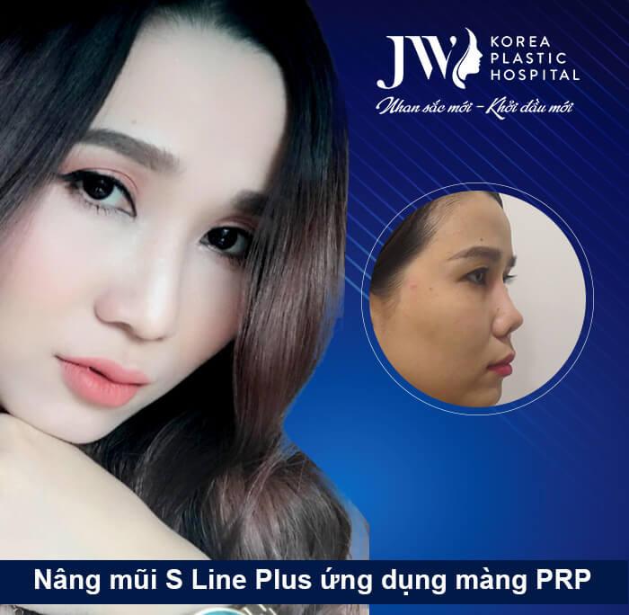 Song Thương - Nâng mũi S line Plus