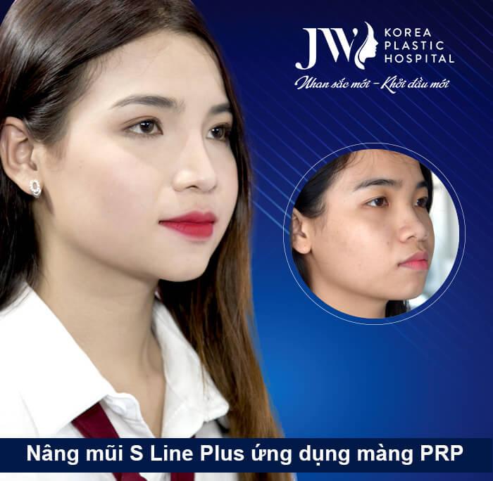 Thanh Tuyền - Nâng mũi S line Plus