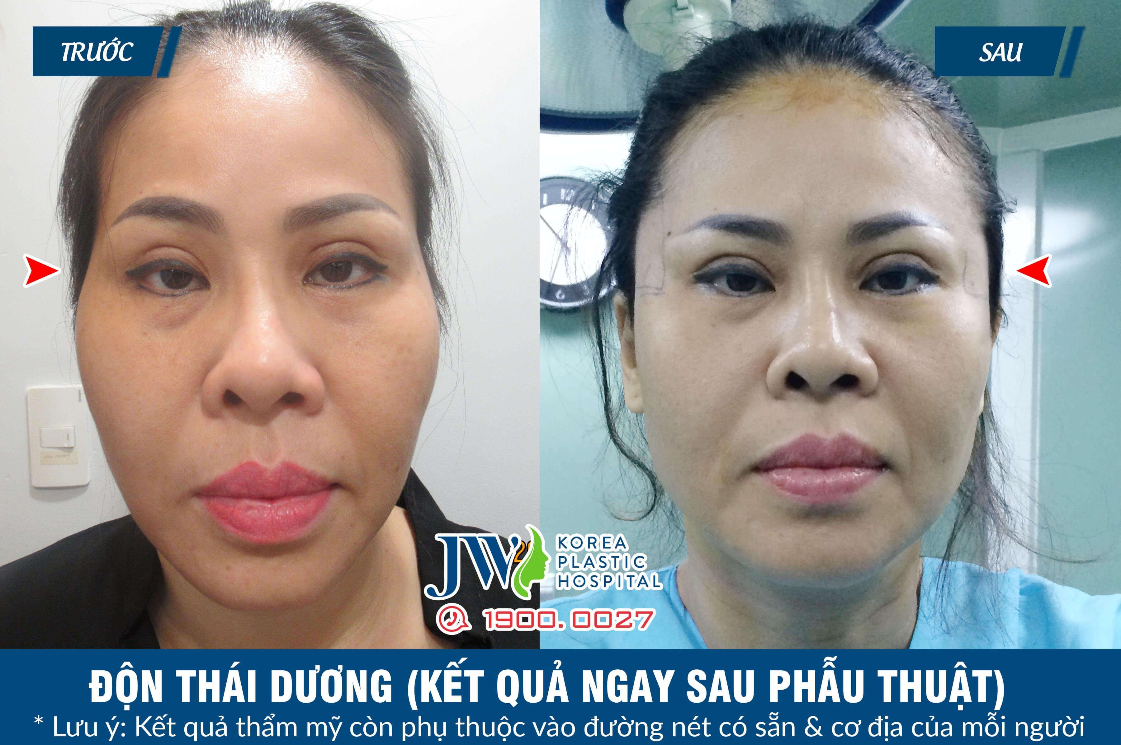 don-thai-duong-5