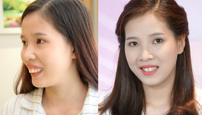 Khánh My - Cô gái may mắn được JW tài trợ một phần kinh phí để phẫu thuật hàm hô