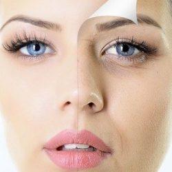 5 bí quyết xóa mắt thâm quầng hiệu quả