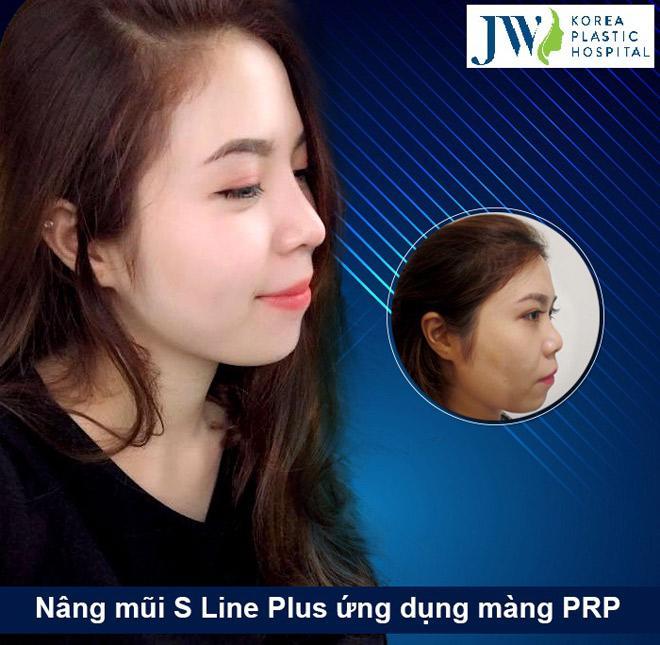 Giải mã lý do nâng mũi S line Plus an toàn