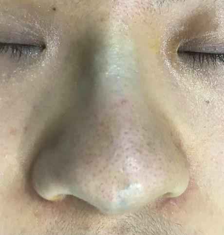 biến chứng khi nâng mũi