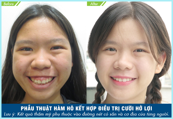 Sự khác biệt rõ rệt trước và sau khi phẫu thuật hàm hô tại JW