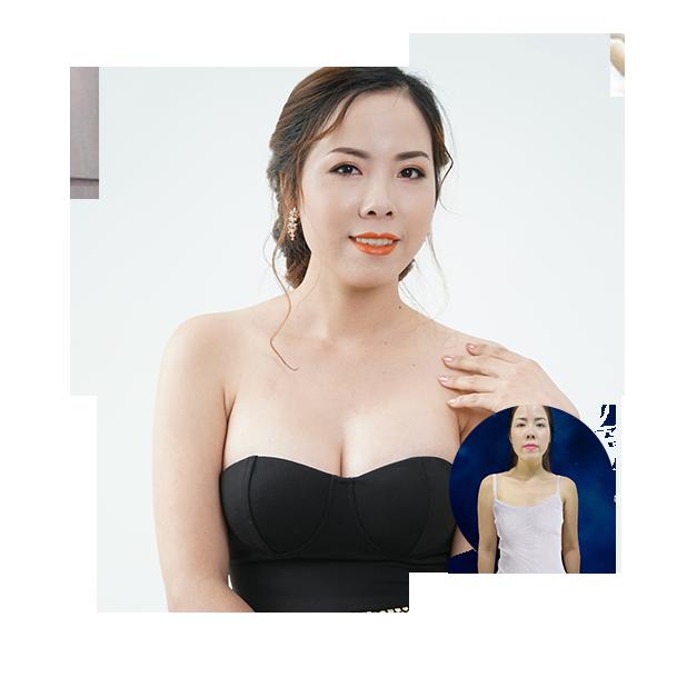 Phẫu thuật nâng ngực chảy xệ_7