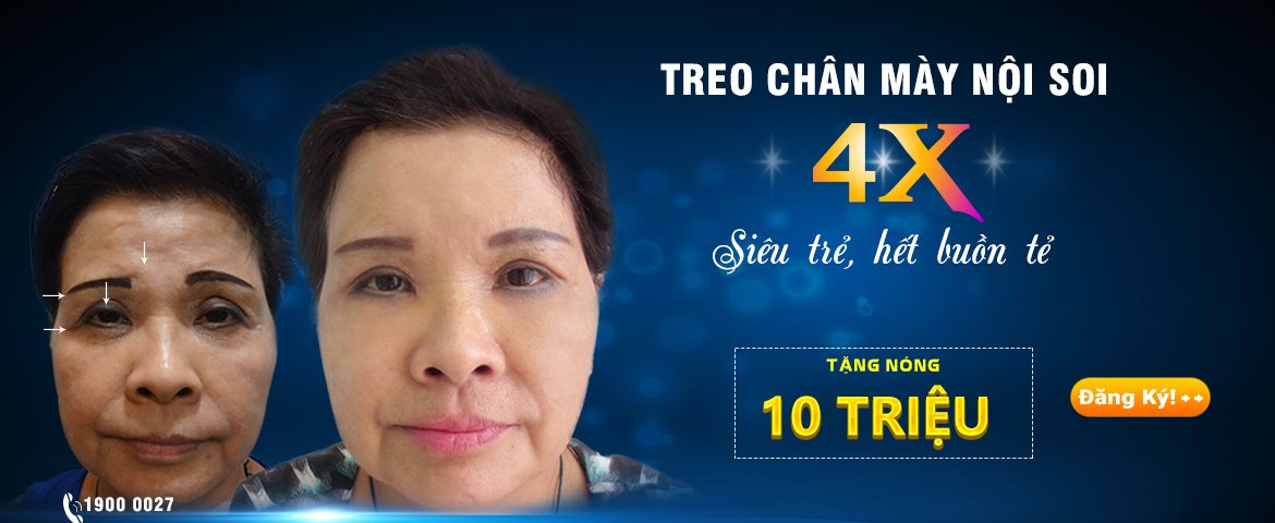 treo chan may noi soi