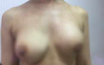Nâng ngực 15 năm bị biến chứng, nữ Việt Kiều cầu cứu bác sĩ Việt Nam