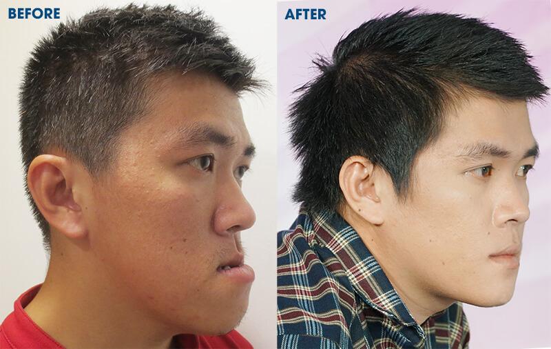 Chàng trai Phú Yên xóa mặc cảm tự ti sau phẫu thuật hàm móm - Ảnh 6