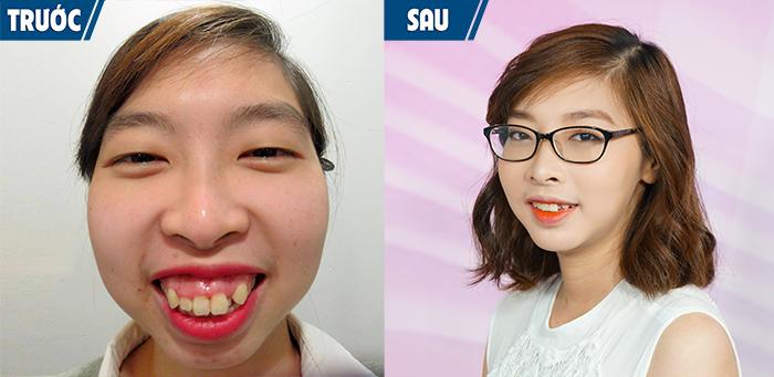 Niềng răng có hết hô hàm không – 5 điều quan trọng cần biết-hình 10