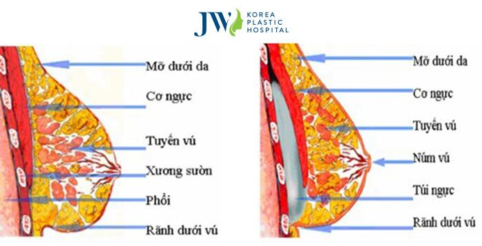Nâng ngực nội soi có đau không - Những điều cần biết về thẩm mỹ ngực- Ảnh 3