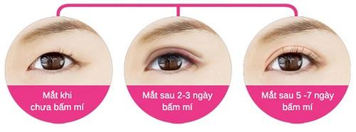 Nhấn mí mắt là gì - Nhấn mí mắt giữ được bao lâu - Điều quan trọng cần biết - Ảnh 5