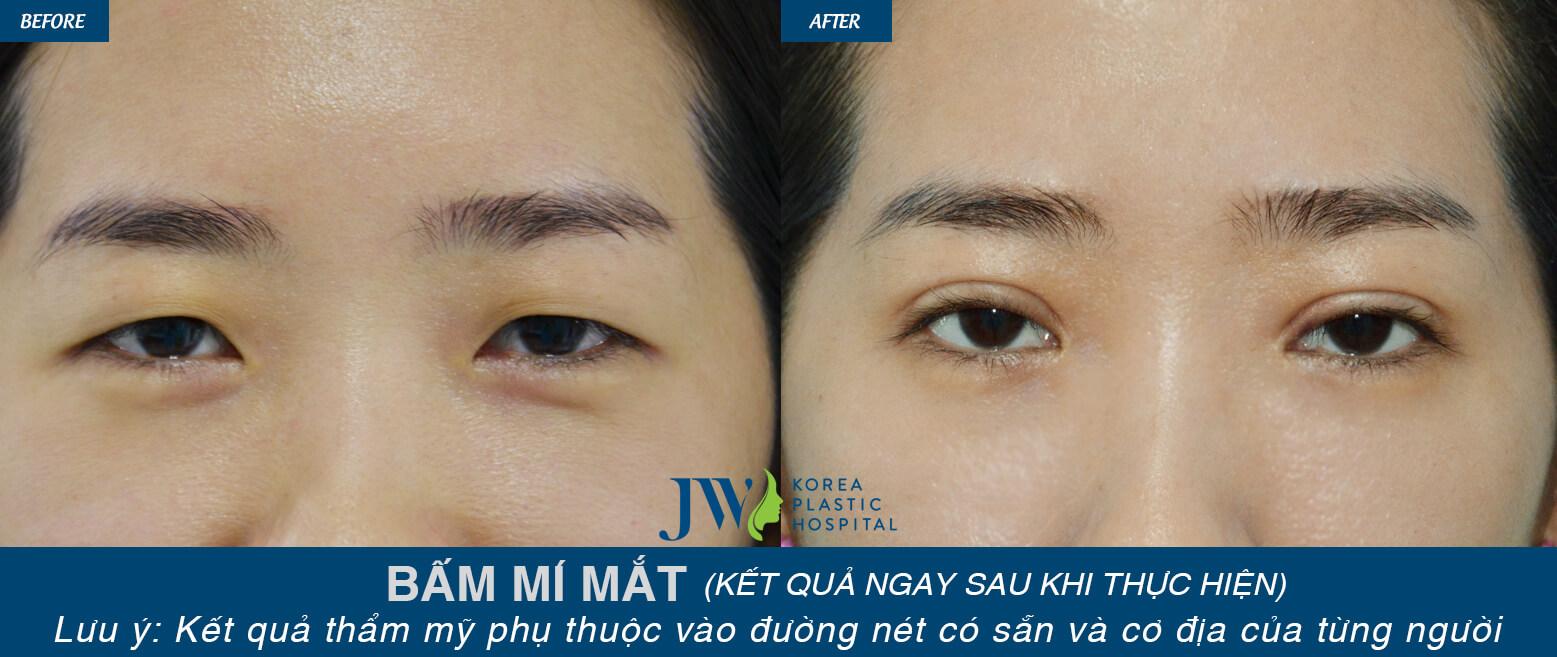 Phẫu thuật thẩm mỹ mắt ở đâu tốt nhất-hình 13