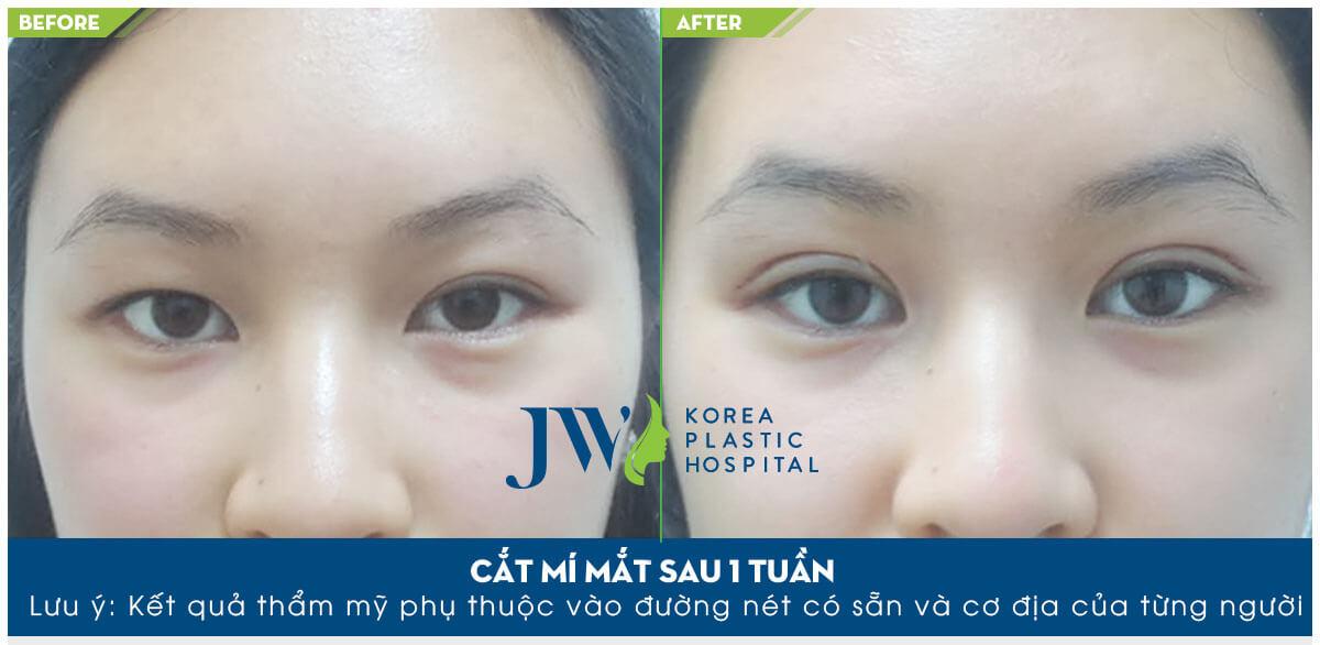 Phẫu thuật thẩm mỹ mắt ở đâu tốt nhất-hình 12