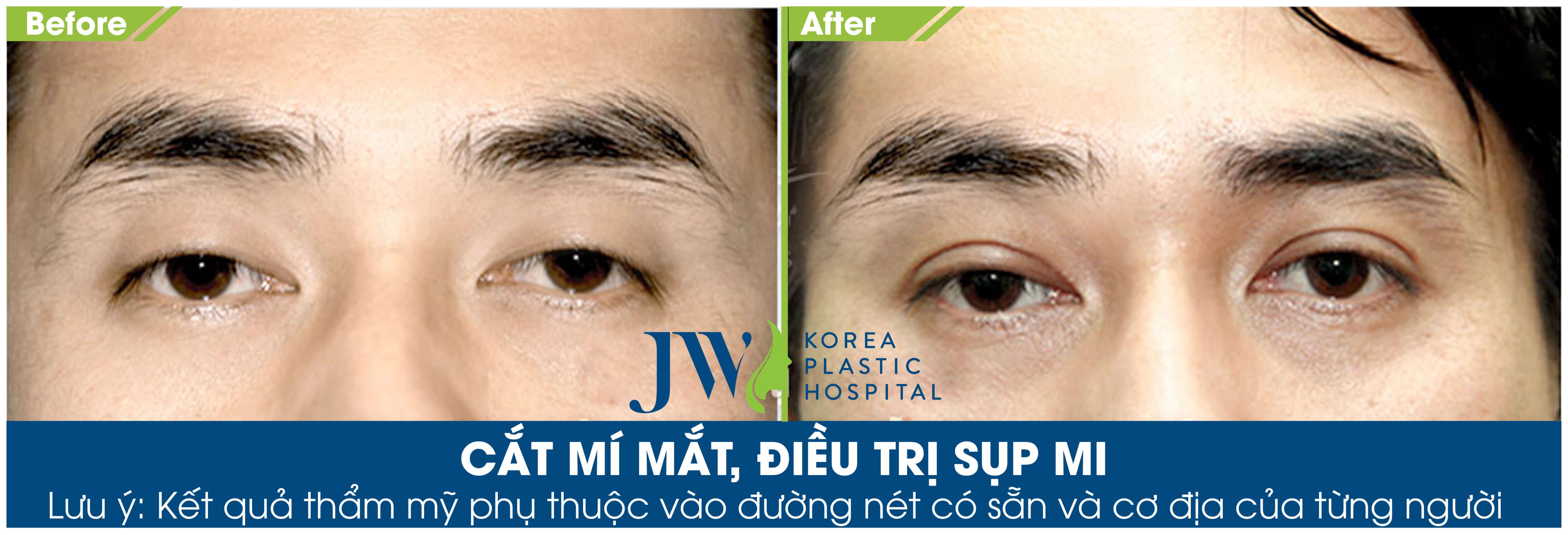 5 nguyên nhân gây sụp mí mắt và cách điều trị hiệu quả - Ảnh 10