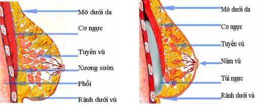 Treo tuyến ngực cải thiện vòng một chảy xệ sau sinh - Ảnh 2