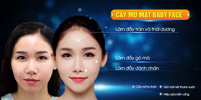 Cấy mỡ mặt Baby Face