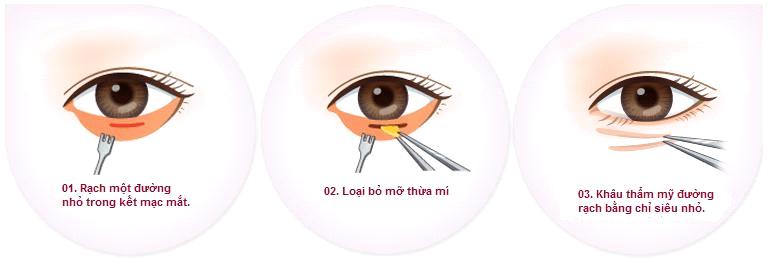 30 phút đánh bay lão hóa bằng công nghệ lấy mỡ bọng mắt - Ảnh 4