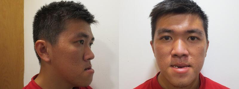 Chàng trai Phú Yên xóa mặc cảm tự ti sau phẫu thuật hàm móm- ảnh 2