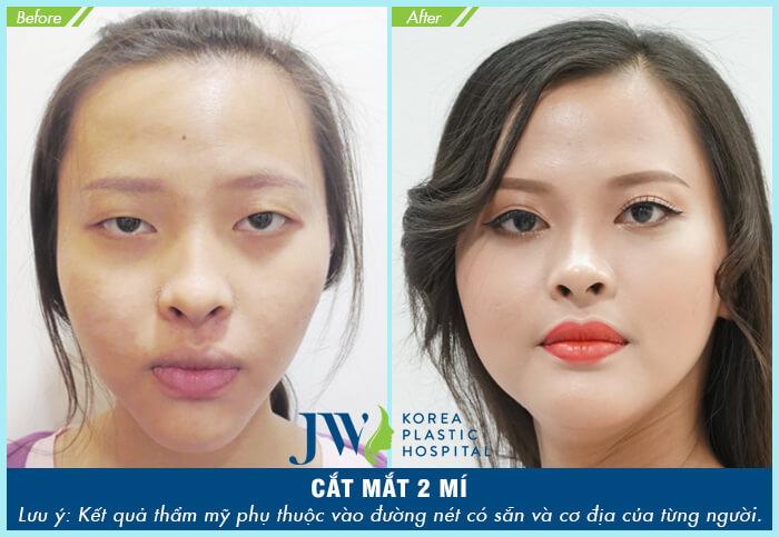 Phẫu thuật thẩm mỹ mắt ở đâu tốt nhất-hình 11