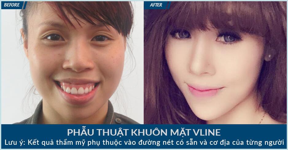 Phẫu thuật khuôn mặt – Bí quyết cho vẻ ngoài ấn tượng - Ảnh 7