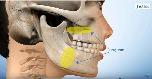 phẫu thuật cắt hàm chữa móm có đau không-hình 7