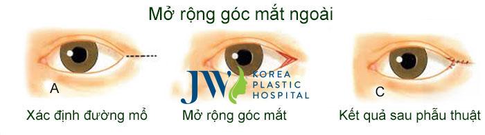 Phẫu thuật thẩm mỹ mắt ở đâu tốt nhất-hình 6