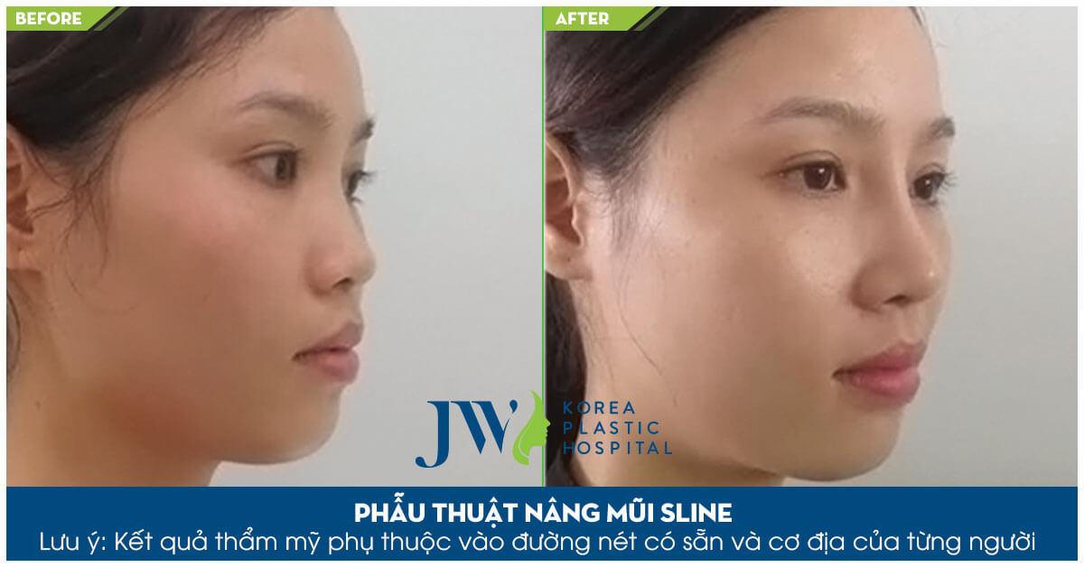 Nâng mũi bọc sụn khác nâng mũi s line như thế nào-hình 11