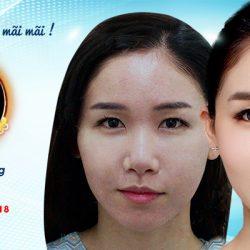 Cấy mỡ với chuyên gia Hàn Quốc - Ưu đãi lên đến 400 triệu đồng