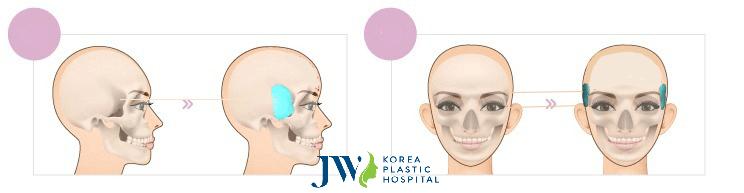 Độn thái dương - Trẻ hóa gương mặt chỉ sau 30 phút - Ảnh 2